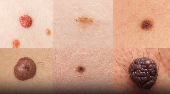 How To Detect Skin Cancer Salons Bellezza